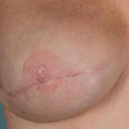 nipple tattoos